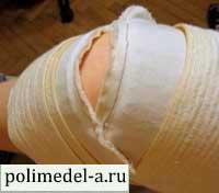 Лечение коленных суставов пленкой Полимедэл
